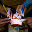 model of a mouth receiving dental treatment